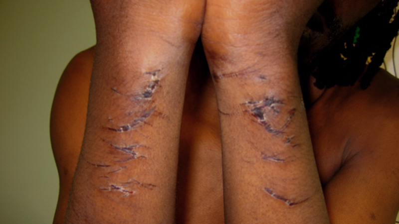 An image from Medical Justice's 2008 Outsourcing Abuse report showing handcuff injuries sustained during an attempted forced removal from the UK in which the ex-detainee alleges excessive force was used by private security guards