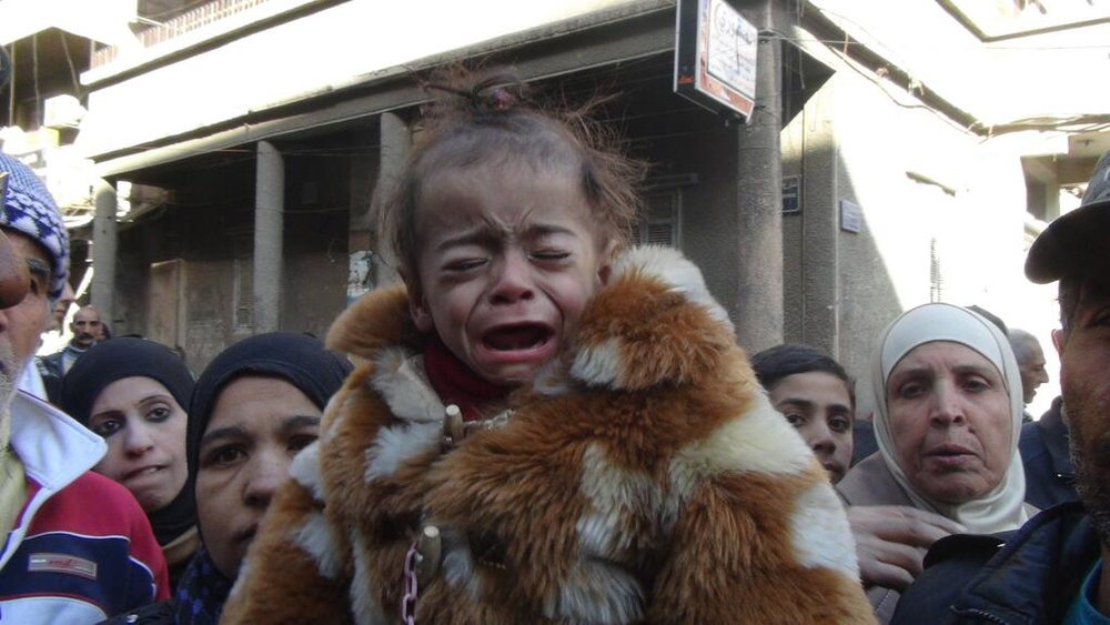 A malnourished child cries in the Yarmouk camp for Palestinians on the outskirts of the Syrian capital Damascus