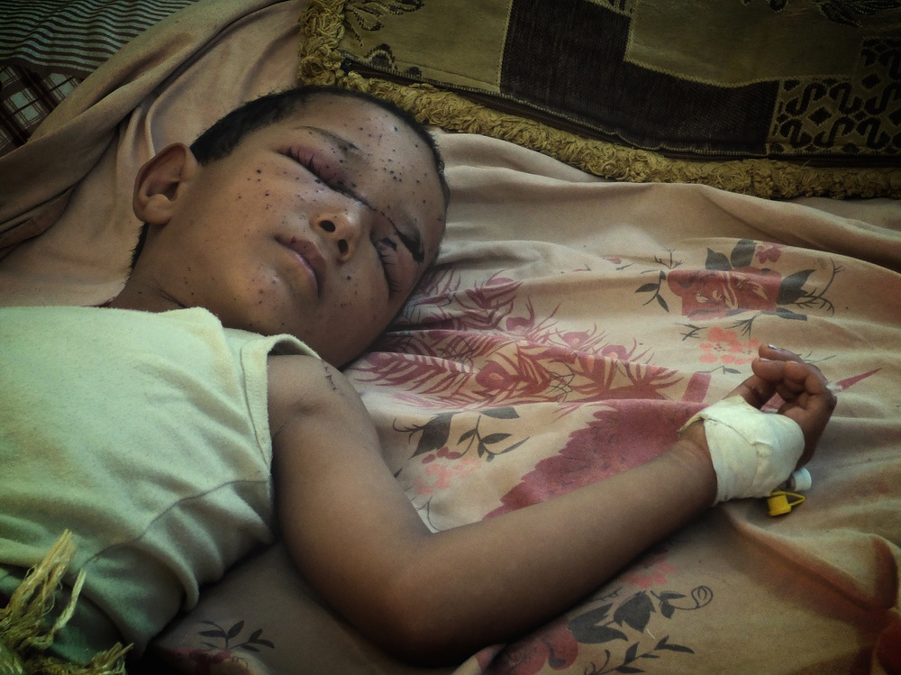 A child with eye injuries lies on a bed.
