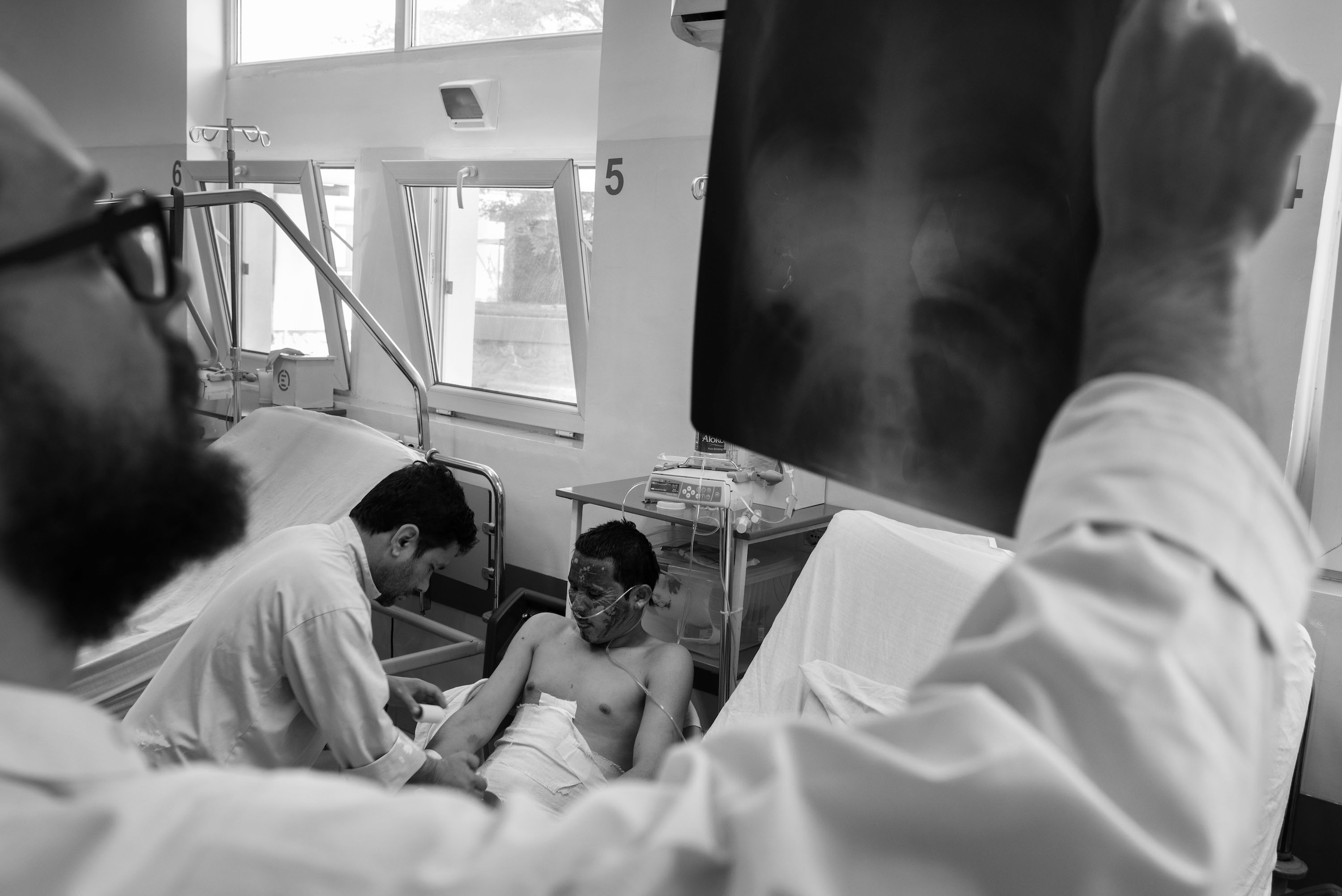 A doctor holds up x-rays in foreground, while patient with burned face is attended to on hospital bed