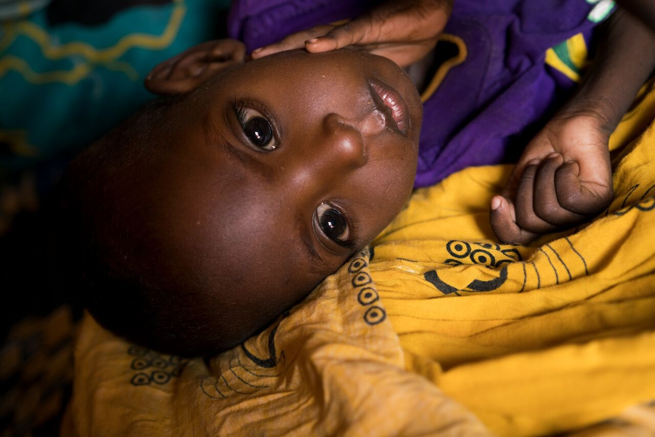 Ahmed, age 2, who is malnurished, lies on the ground of his family's home in Uusgure, Puntland,