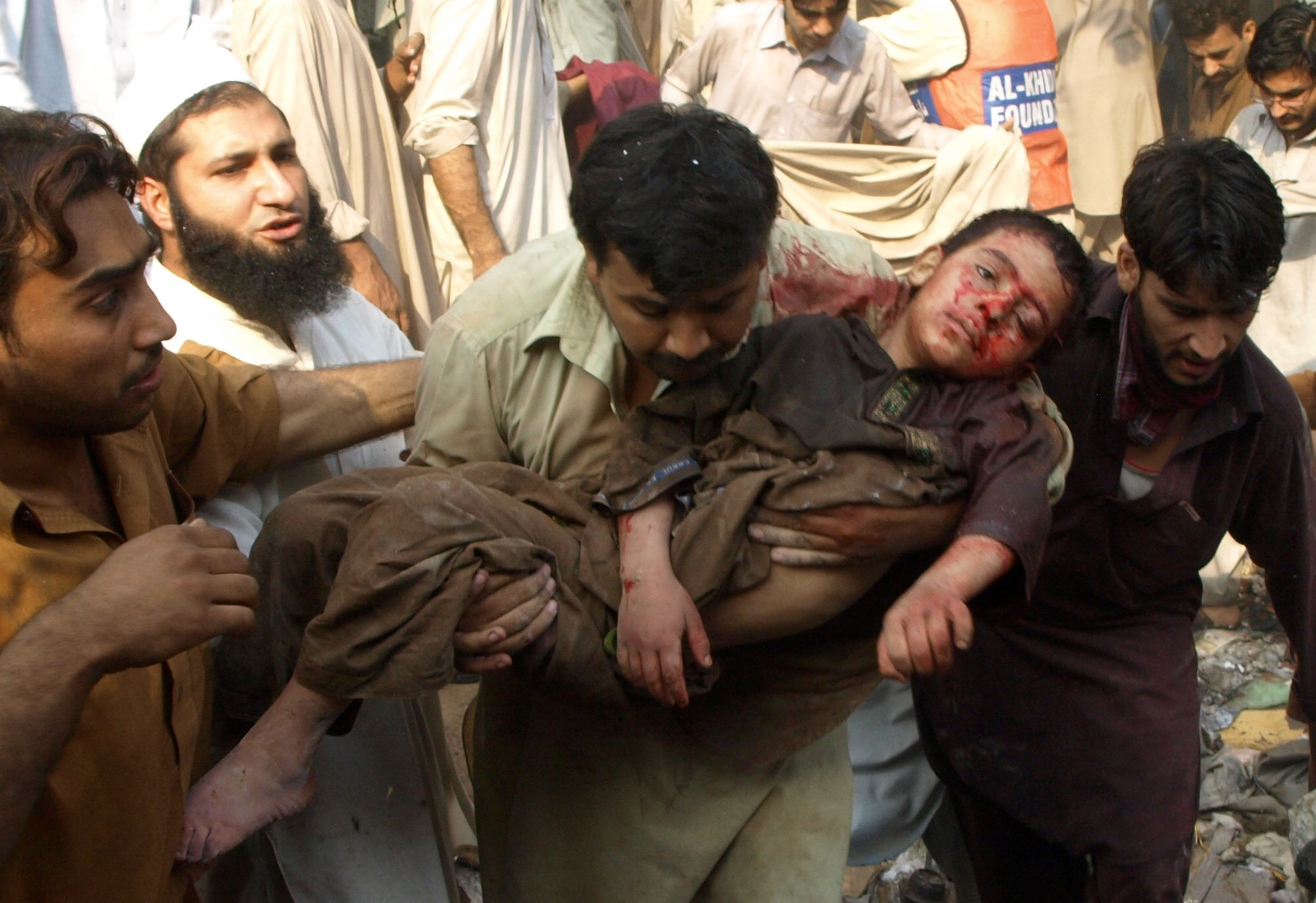 Many of the wounded in the Peshawar bomb blast were women and children