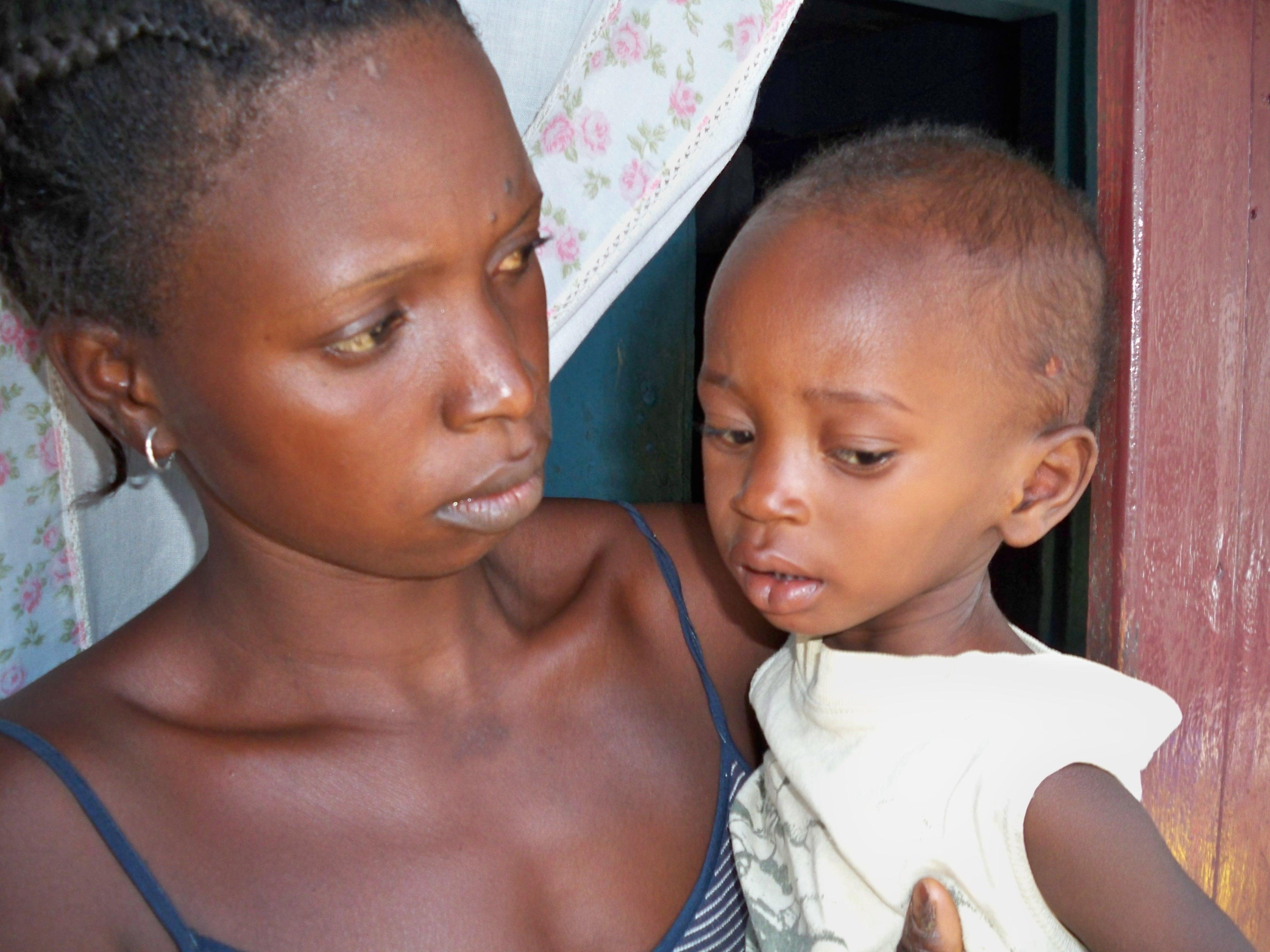 malnutrition related keywords malnutrition long tail
