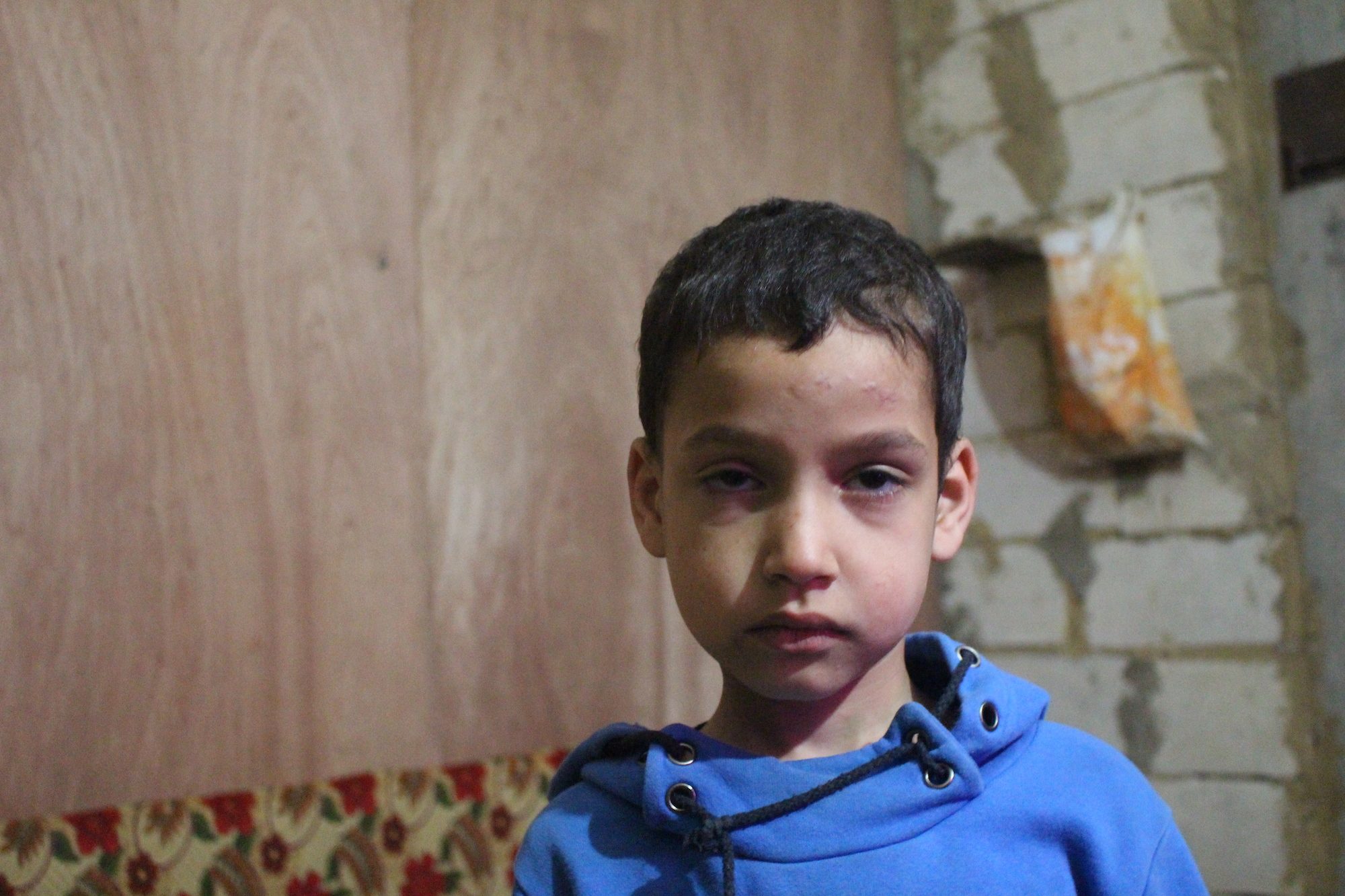 Mohammed, 7, a Syrian refugee from Homs now in Lebanon, was injured when the ceiling of the underground car park his family are staying collapsed