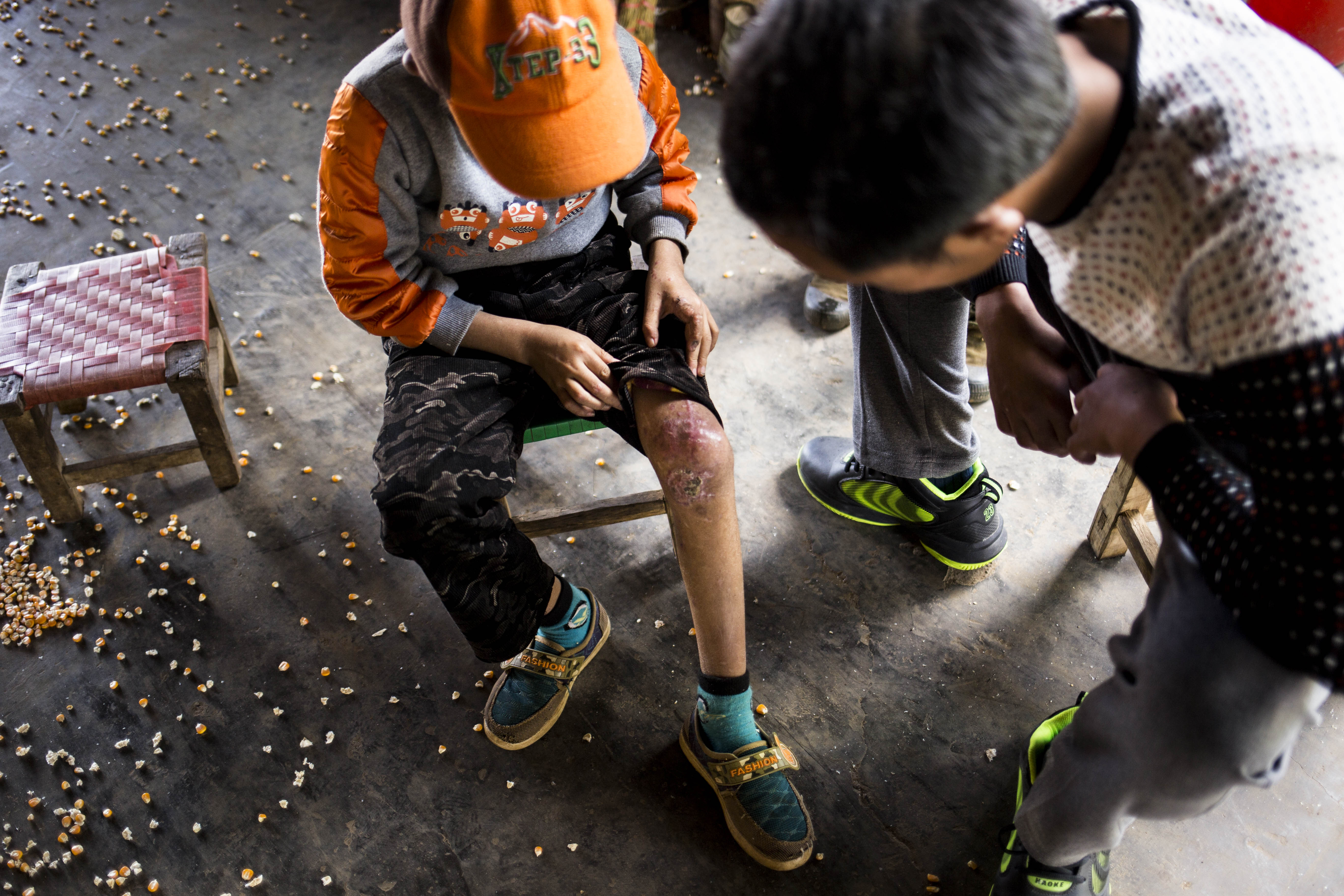 Luo Ben Qing, 10, is shown in November 2015 displaying injuries he received in a landmine explosion in Myanmar's Shan State
