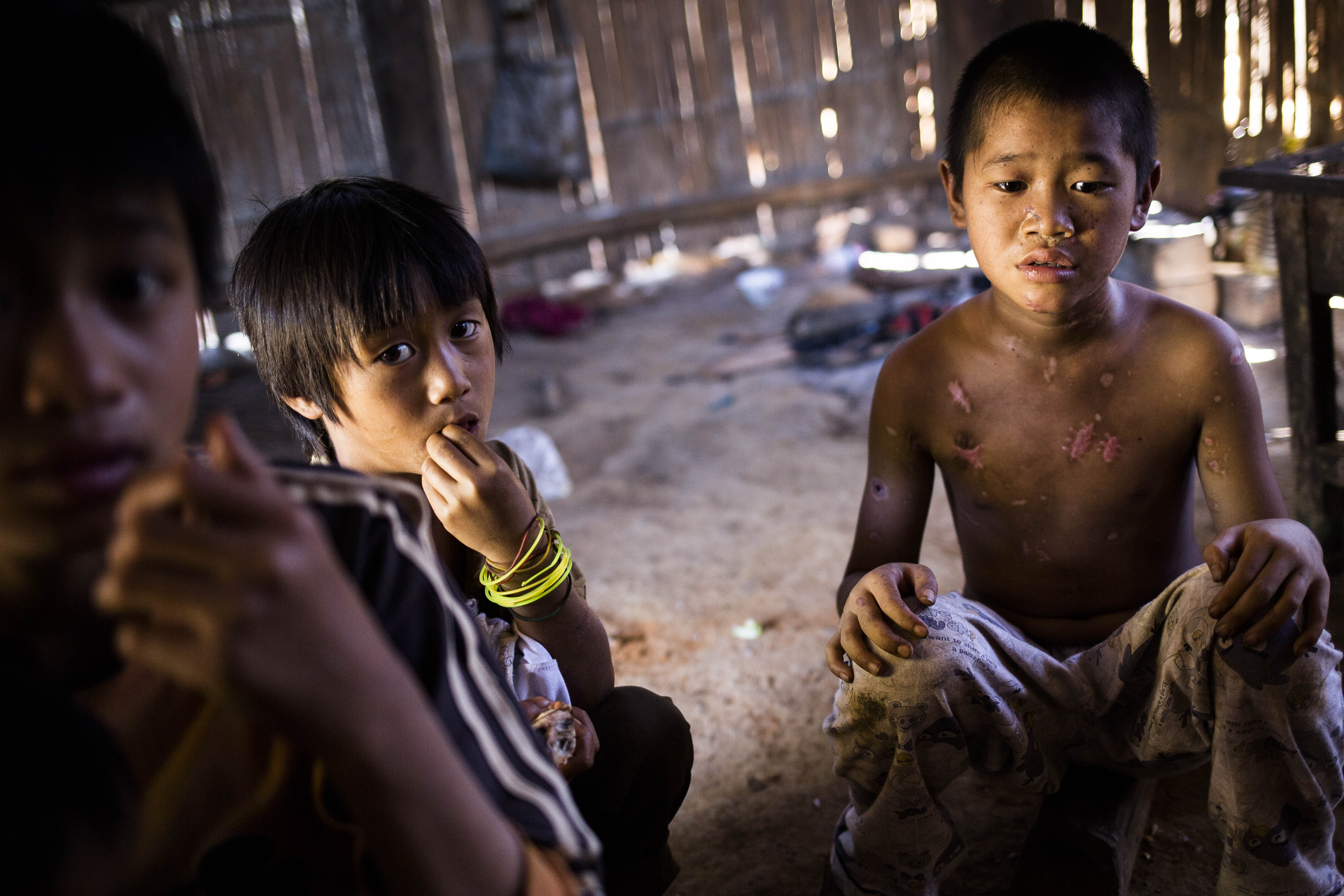 Luo Ben Cing, 10, shown in November 2015 displaying injuries he received from a landmine explosion in Myanmar's Shan State