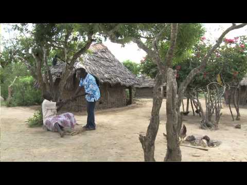Neglected Diseases - Elephantiasis