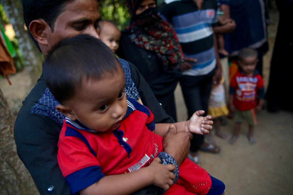 This two-year-old child's hand was badly burnt when Myanmar soldiers set fire to his village