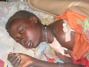 [Sudan] Girl caught in Janjaweed crossfire, Junaynah hospital, western Darfur. December 2003.