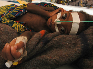 [Niger] Niger, Tahoua, A skeletal child receives emergency food through a tube at an emergency feeding center in Niger. Malnutrition is a serious problem each year in Niger, the drought and famine brought it to catastrophic proportions. [Date picture take