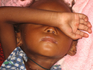 [Guinea] Hungry child at Donka Hospital child nutrition and health centre, Conakry. [Date picture taken: 11/23/2006]