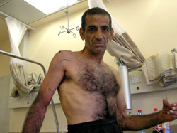 [Israel] An Arab Israeli suffers from shrapnel wounds following Hezbollah attacks in Haifa. [Date picture taken: 08/10/2006]