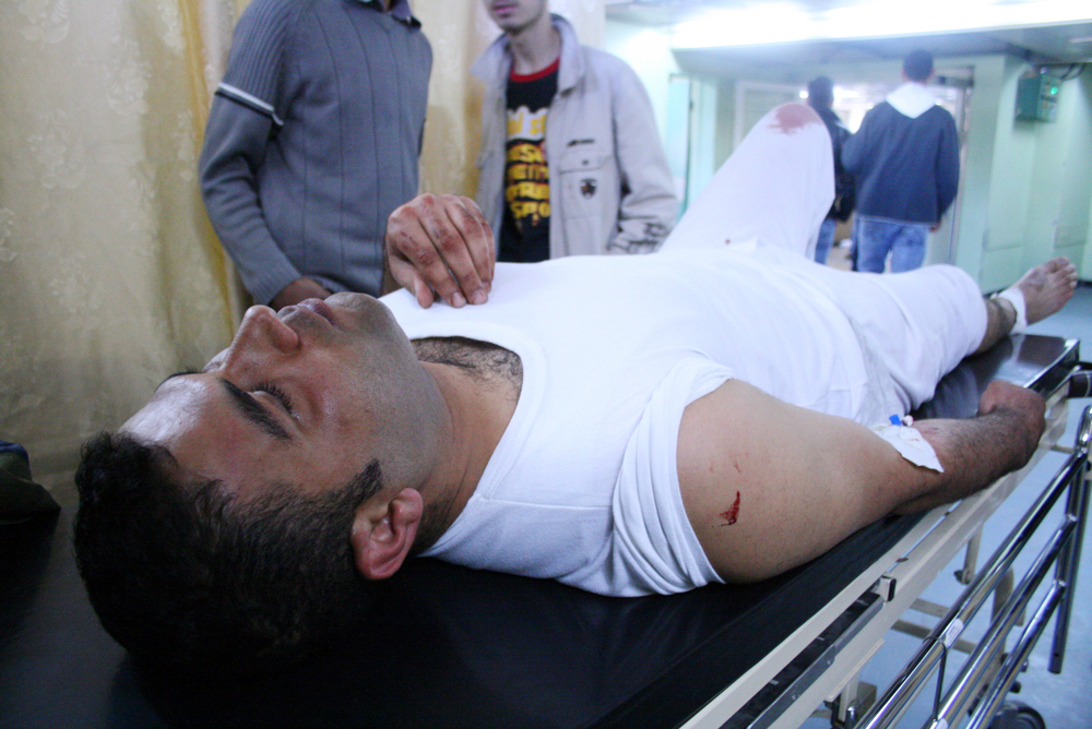 A Palestinian man lies in hospital.