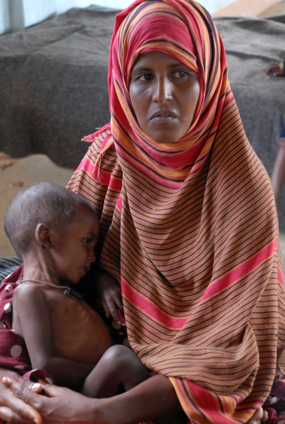 A mother holds her malnourished child in one of the wards for refugees, Dadaab, Garissa district, Kenya.