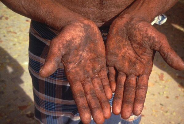 The New Humanitarian | Arsenic in food chain raises health concerns