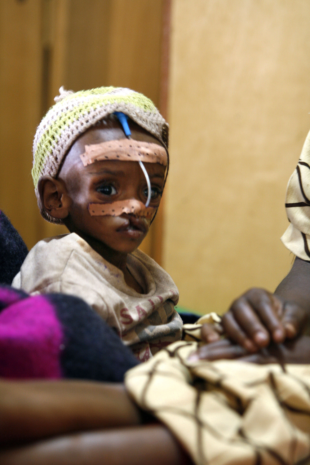 A boy suffering from malnutrition is treated at a stabilization centre July 2008 in Chinchinto, southern Ethiopia. According to MSF 11,800 children suffering from severe acute malnutrition have been admitted in the Oromiya and Southern Nations and Nationa