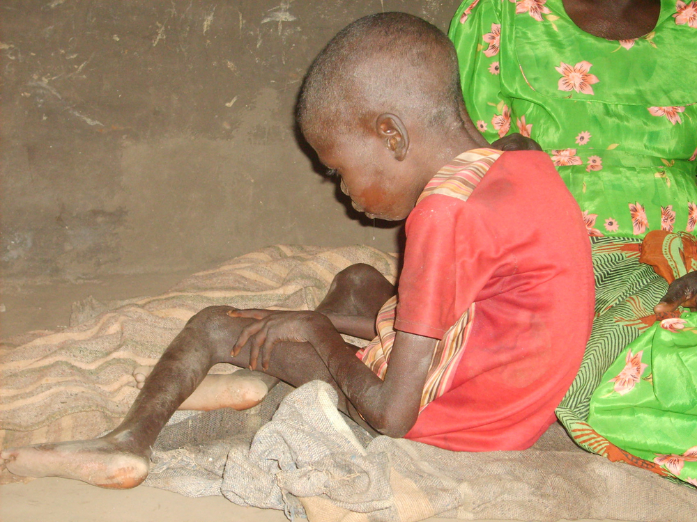 A child under seizure and nodding in Okidi village