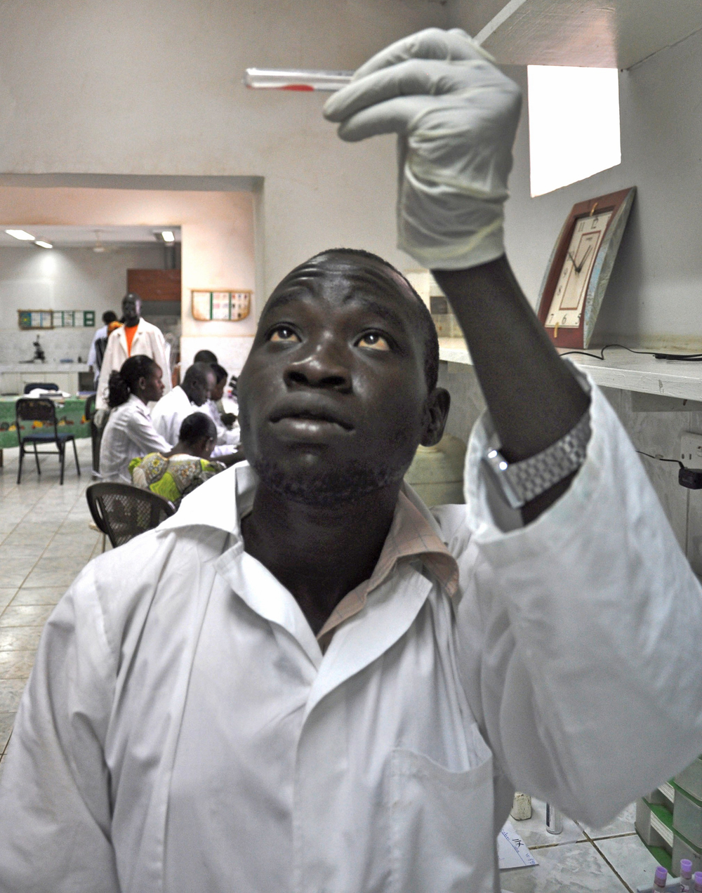 A technician in Juba hospital, South Sudan, examines a blood sample. The new country faces a critical shortage of blood
