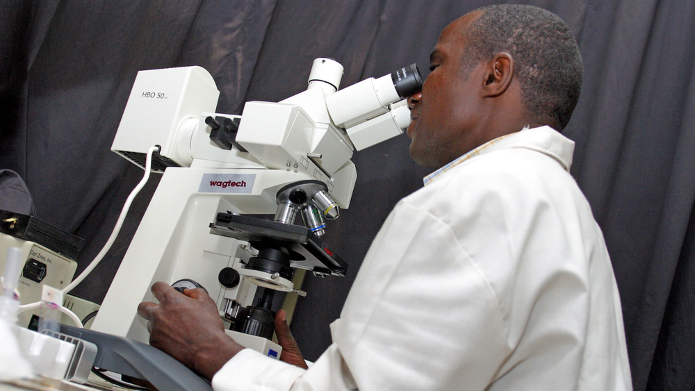 Microscopic analysis of sputum smears at the National TB and Leprosy Reference Laboratory (NTRL) in Kampala