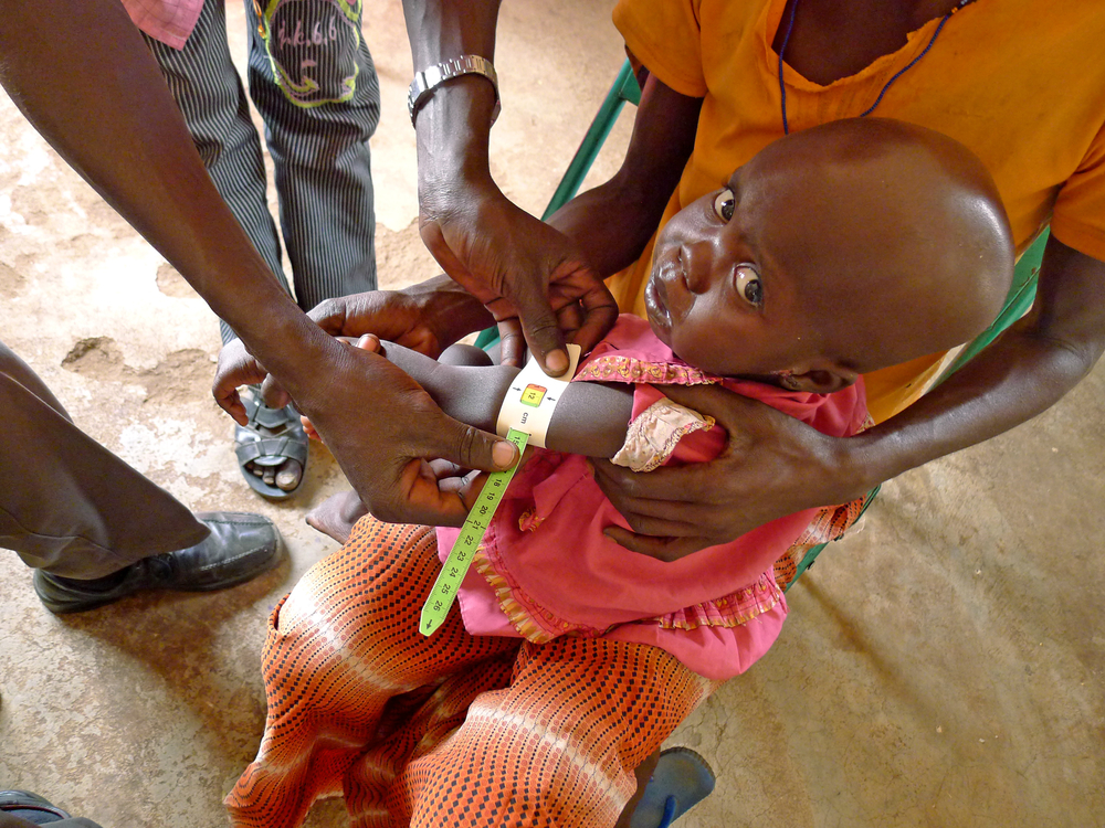 Upper arm measurements at Merlin run Boma hospital, Jonglei state Malnutiriton is a major contributory factor to the prevalence and mortality of neglected tropical diseases in South Sudan