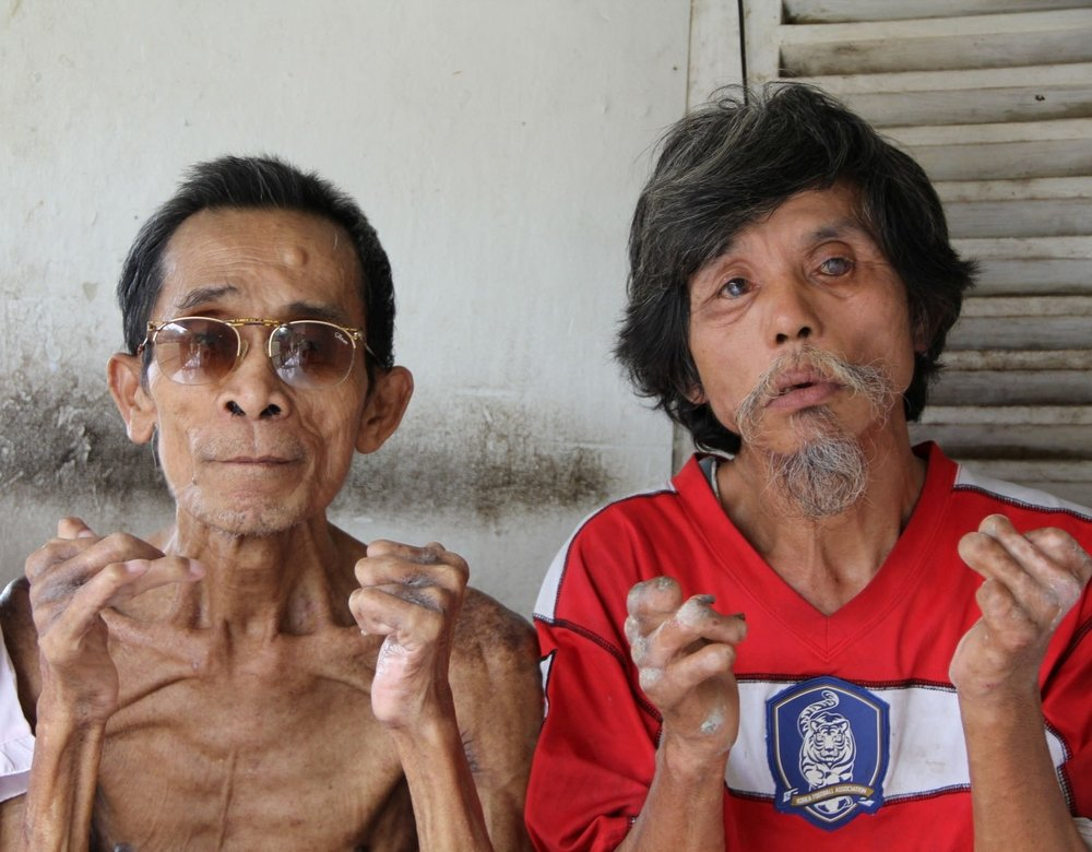 Leprosy patients in Indonesia's West Java Province in a compound at Sintanala District Hospital reserved for those with leprosy. Patients face severe ostracisim from family, employers and even religious leaders. There are some 22,000 registered cases of l
