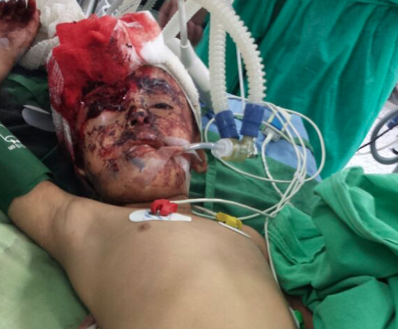 Amel Naser six receives treatment at the military hospital in Sanaa Shawb district Sana'a after suffering injuries in her eye face and leg from the explosion caused by the Noqum mountain attack in May 2015