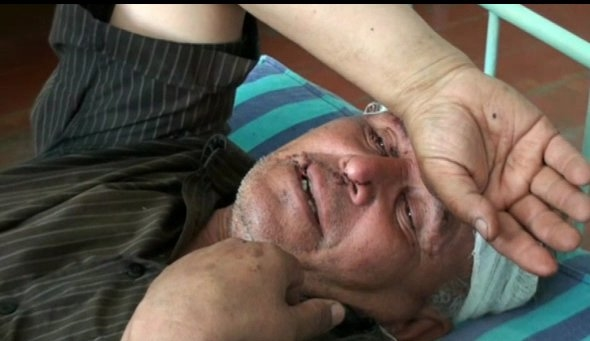 A man injured in ethnic violence in Kyrgystan in 2010 when ethnic Uzbeks were targeted