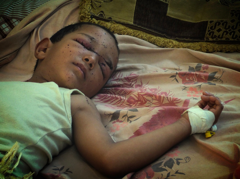 Four-year-old Faiz al-Olfi lies sleeping in al-Naqeeb hospital in Yemen's southern city of Aden, his face speckled with tiny shrapnel wounds