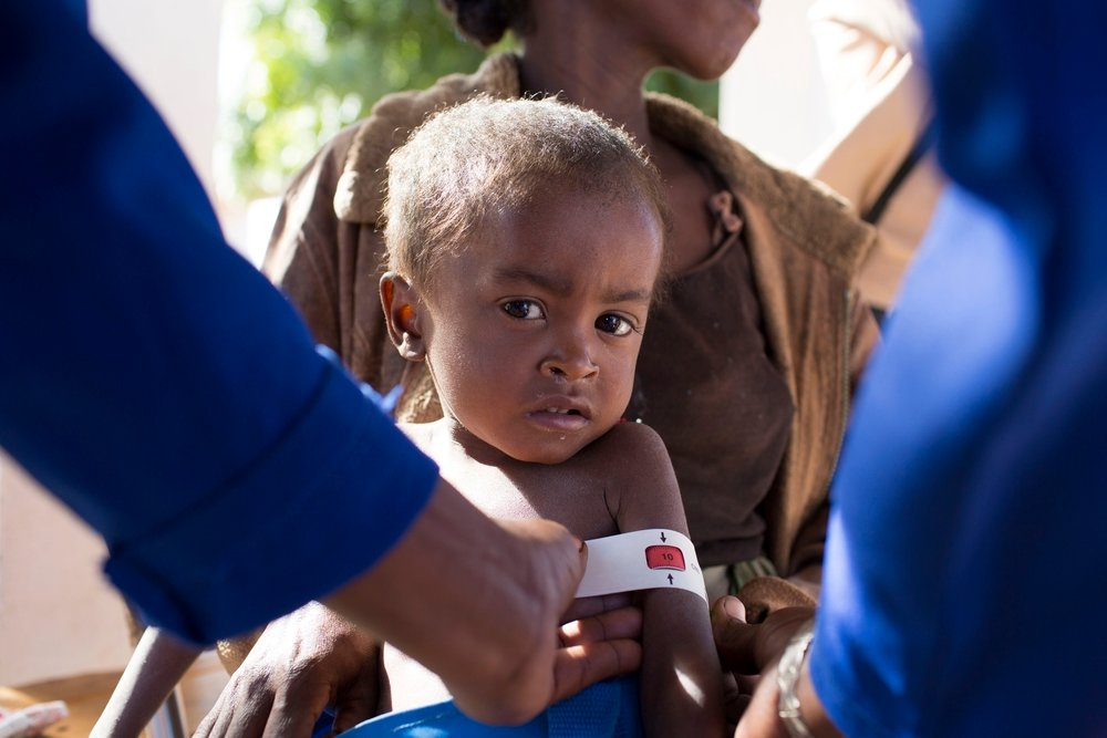 Malnourished boy being examined in southern Madagascar
